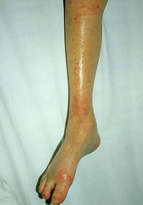 Dermatitis Art | Fine Art America