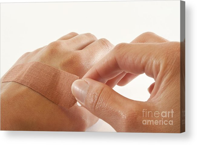 Bandage Acrylic Print featuring the photograph Two Hands With Bandage by Blink Images