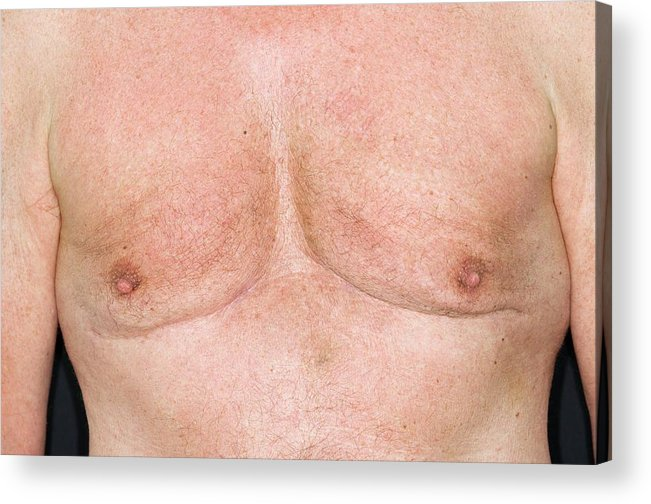 Male Breasts After Liposuction Acrylic Print