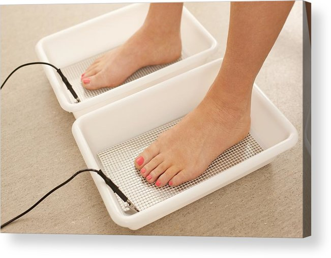 Studio Shot Acrylic Print featuring the photograph Iontophoresis For Excess Sweating by