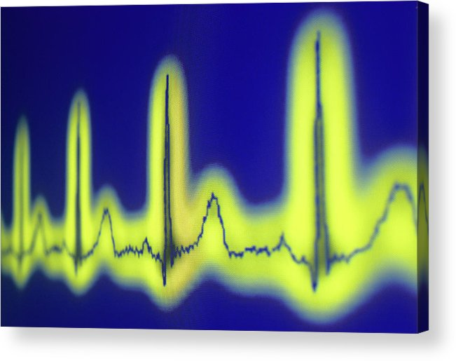 Electrocardiograph Acrylic Print featuring the photograph Ecg Of A Normal Heart Rate by Daniel Sambraus/science Photo Library