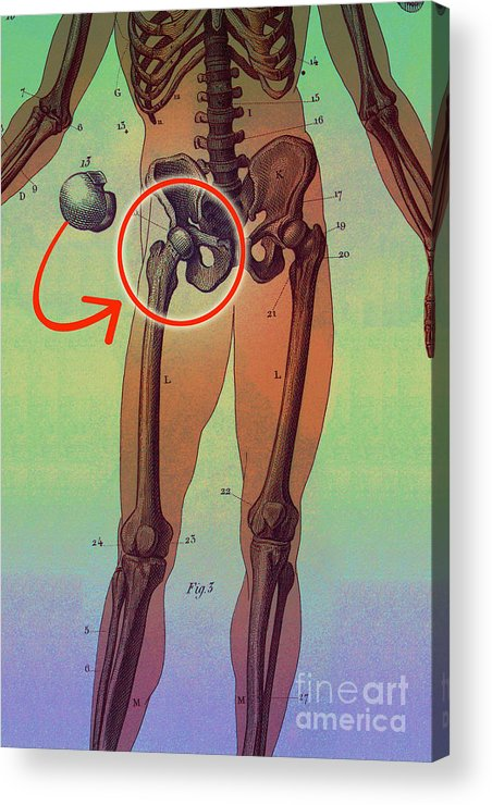 Medical Acrylic Print featuring the photograph Hip Replacement by Dennis D Potokar