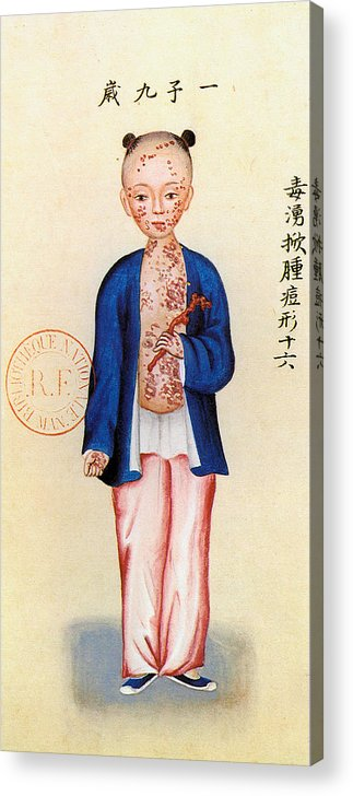 Alternative Acrylic Print featuring the painting China Smallpox by Granger