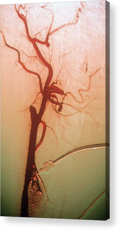 Abnormal Acrylic Print featuring the photograph Occluded Carotid Artery by Darrigrand/cnri/science Photo Library