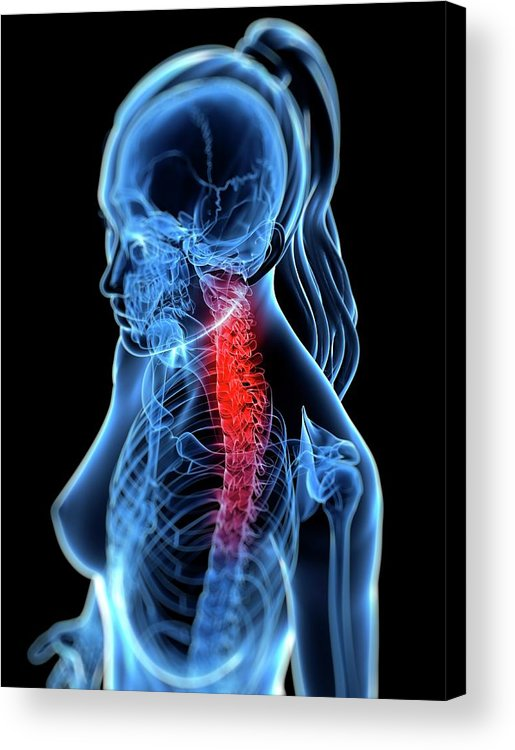 Anatomy Acrylic Print featuring the digital art Back Pain, Conceptual Artwork by Sciepro