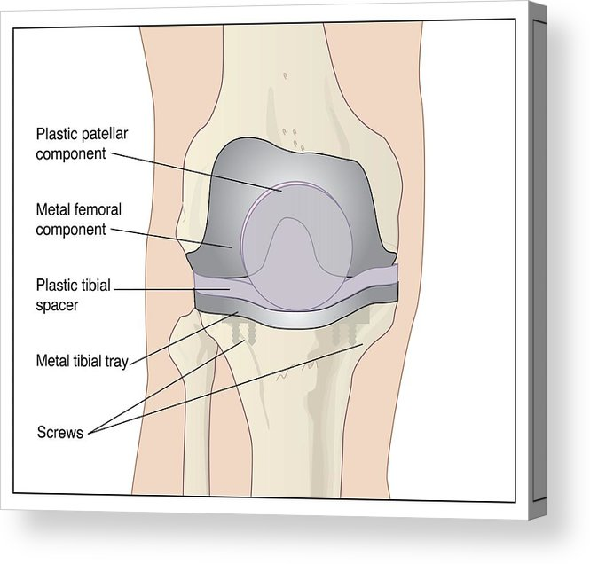Artwork Acrylic Print featuring the photograph Knee After Knee Replacement, Artwork by Peter Gardiner