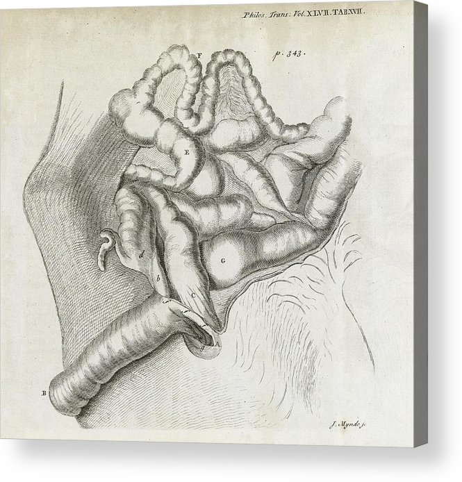 Disorder Acrylic Print featuring the photograph Fistula And Hernia, 18th Century by Middle Temple Library