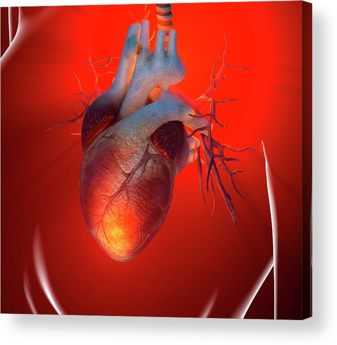 Event Acrylic Print featuring the digital art Heart Attack, Conceptual Artwork by Science Photo Library - Roger Harris