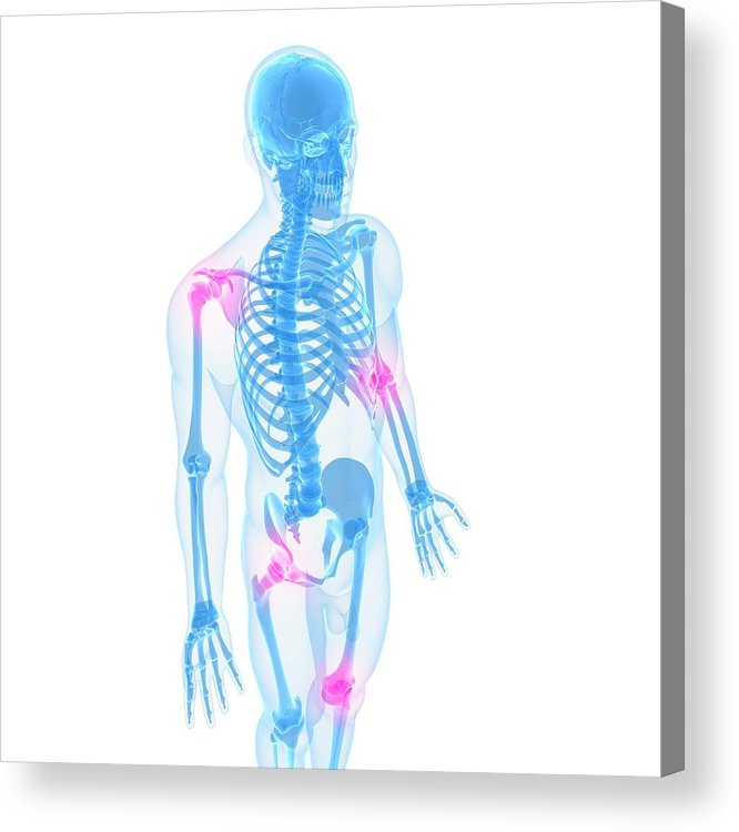White Background Acrylic Print featuring the digital art Joint Pain, Conceptual Artwork by Sciepro