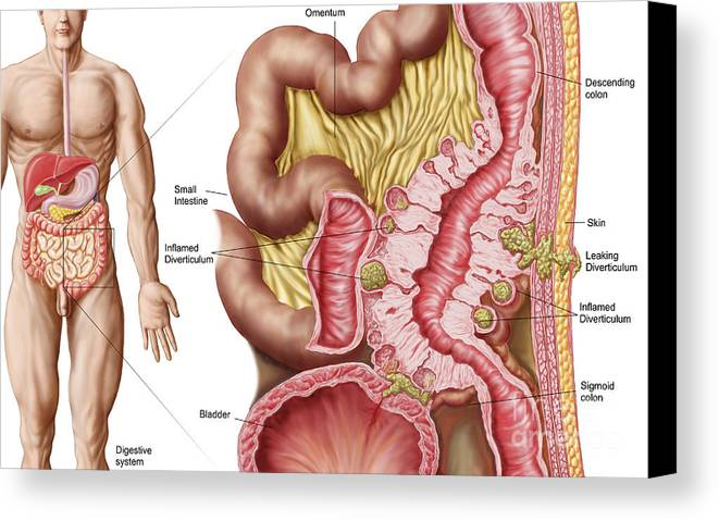 Inflammation Canvas Print featuring the digital art Illustration Of Diverticulosis by Stocktrek Images
