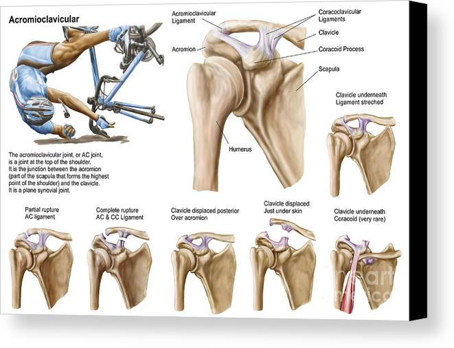 Anatomy Of Acromioclavicular Joint Canvas Print Canvas Art By