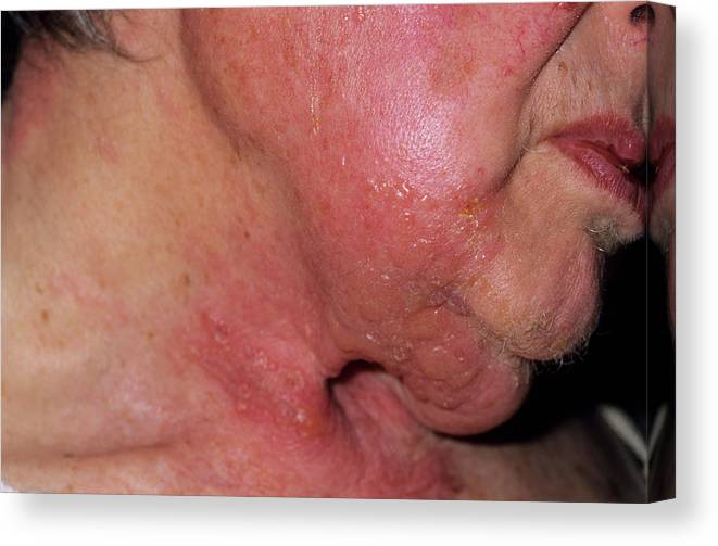 Herpes Zoster Canvas Print featuring the photograph Shingles Rash by Dr P. Marazzi/science Photo Library