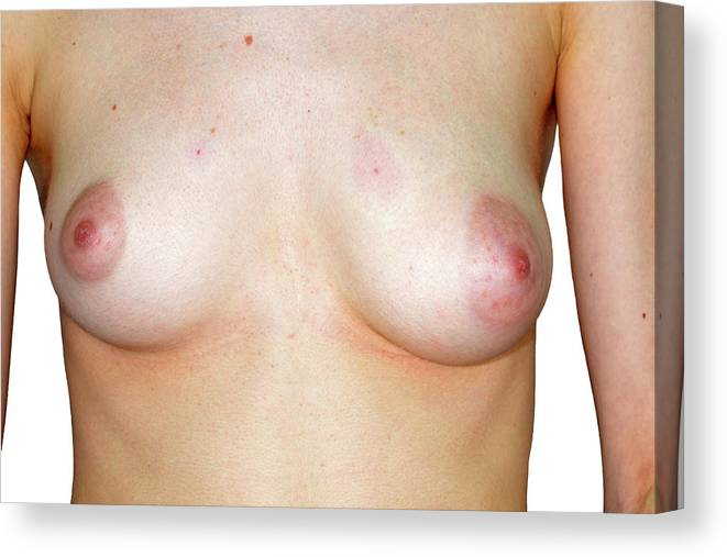 People Canvas Print featuring the photograph Breast Asymmetry by Dr P. Marazzi/science Photo Library