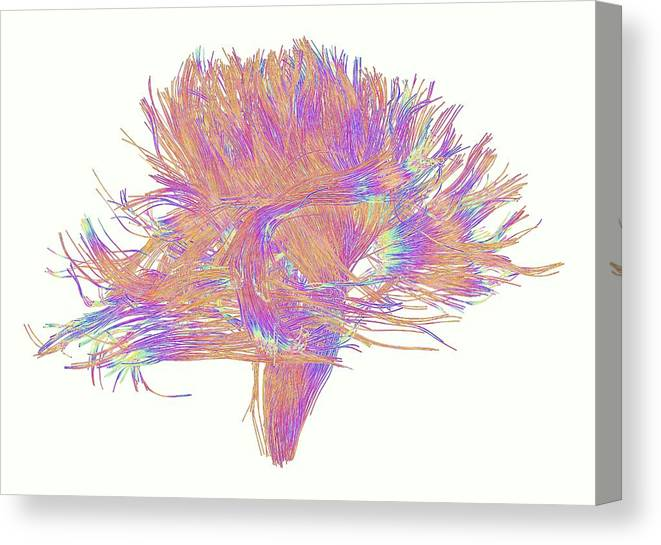 Brain Scan Canvas Print featuring the photograph White Matter Fibres Of The Human Brain by Alfred Pasieka