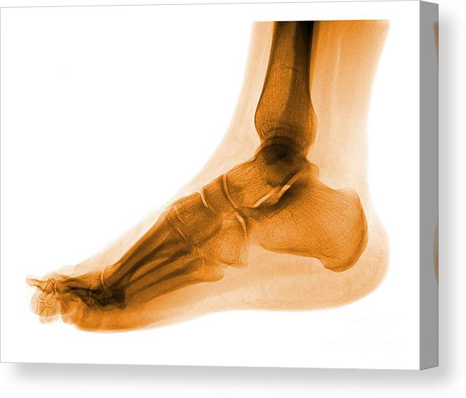 Anatomy Canvas Print featuring the photograph Foot by Medical Body Scans