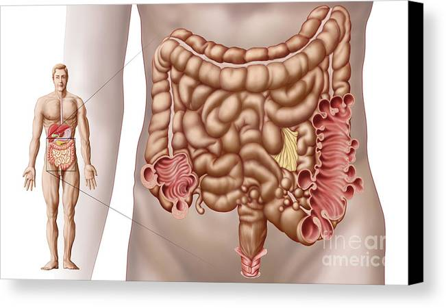 Horizontal Canvas Print featuring the digital art Diverticulitis In The Descending Colon by Stocktrek Images