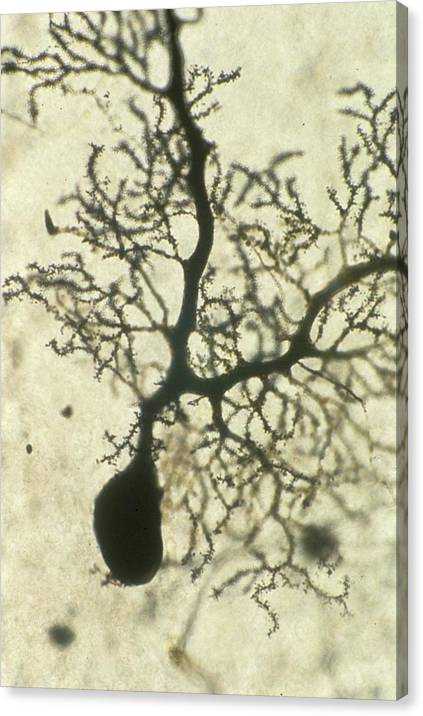 Purkinje Nerves Cell by Overseas/collection Cnri/spl