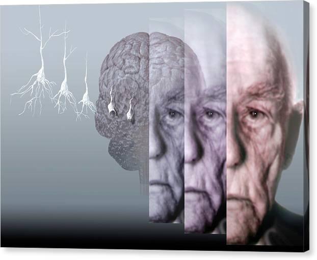 Alzheimer's Disease by Hans-ulrich Osterwalder