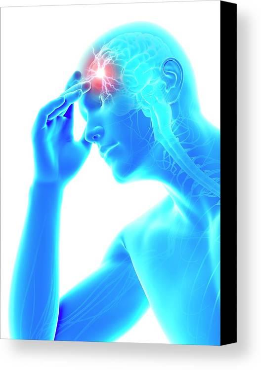 Artwork Canvas Print featuring the photograph Human Headache by Sebastian Kaulitzki