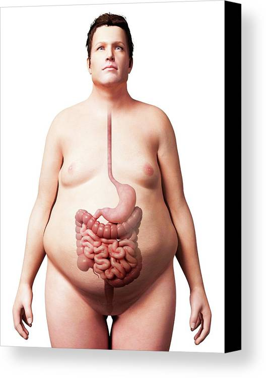 Artwork Canvas Print featuring the photograph Digestive System Of Obese Man by Sebastian Kaulitzki