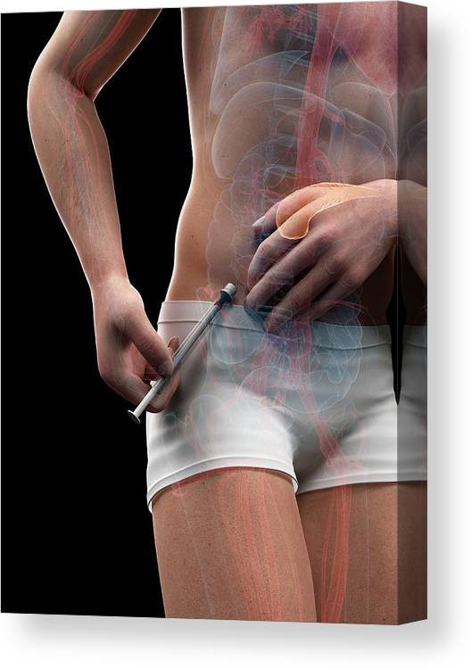 Artwork Canvas Print featuring the photograph Insulin Injection by Sciepro/science Photo Library