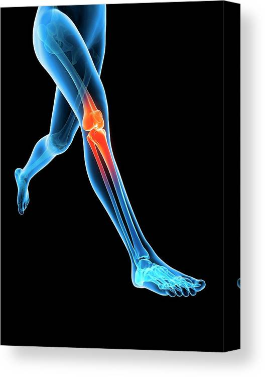 Artwork Canvas Print featuring the photograph Human Knee Joint by Sebastian Kaulitzki