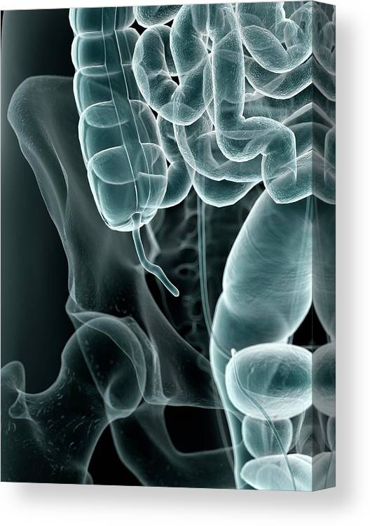 Artwork Canvas Print featuring the photograph Human Appendix by Sciepro
