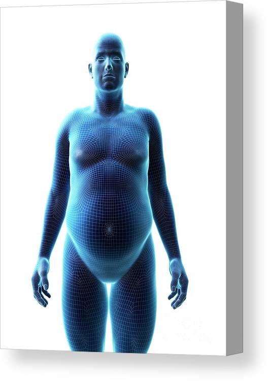 3d Canvas Print featuring the photograph Obese Man by Sebastian Kaulitzki/science Photo Library