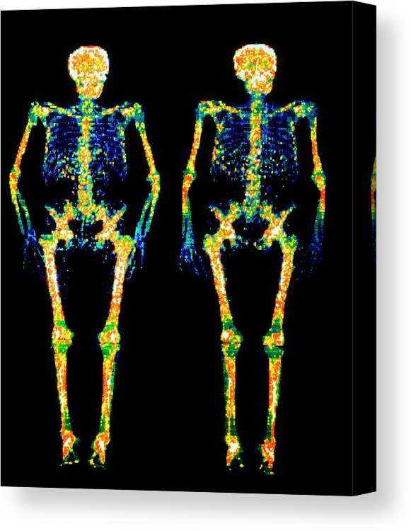 Skeleton Canvas Print featuring the photograph Bone Densitometry Scans Of The Skeletons Of Twins by Dr. Nigel Morrison/science Photo Library