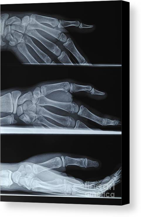 Broken Canvas Print featuring the photograph Hand X-ray by Sami Sarkis