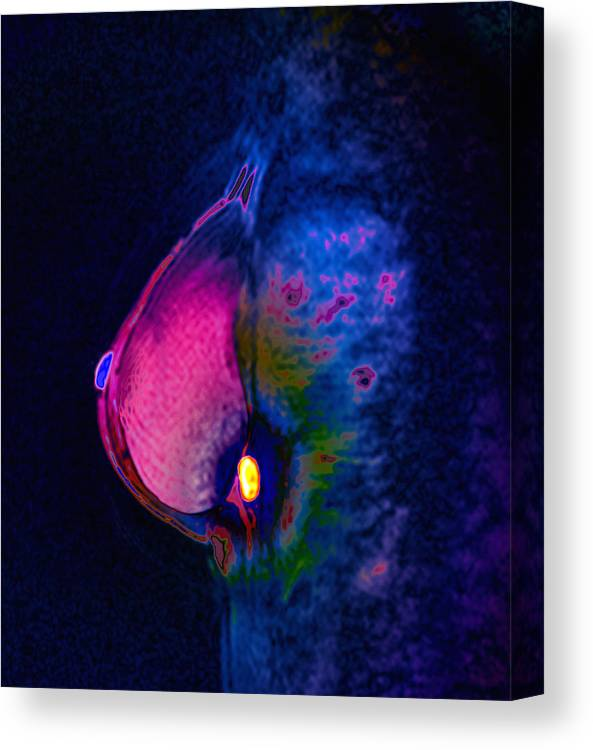Human Canvas Print featuring the photograph Breast Cancer by Zephyr/science Photo Library
