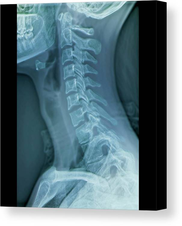 Anatomy Canvas Print featuring the photograph Normal Neck by Zephyr/science Photo Library