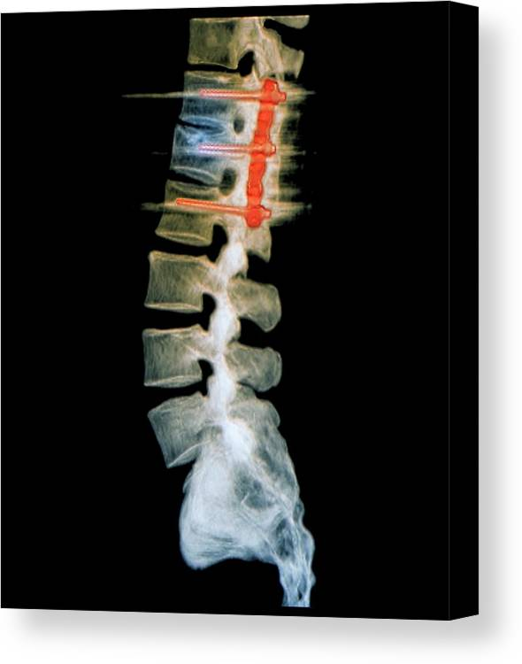 Nobody Canvas Print featuring the photograph Pinned Spinal Fracture by Zephyr