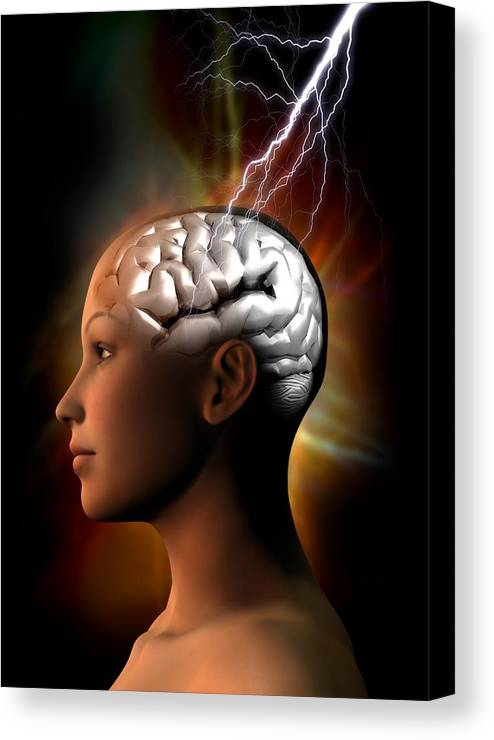 Anatomy Canvas Print featuring the photograph Migraine, Conceptual Artwork by Victor Habbick Visions