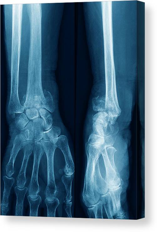 Fracture Canvas Print featuring the photograph Fractured Wrist by Zephyr/science Photo Library
