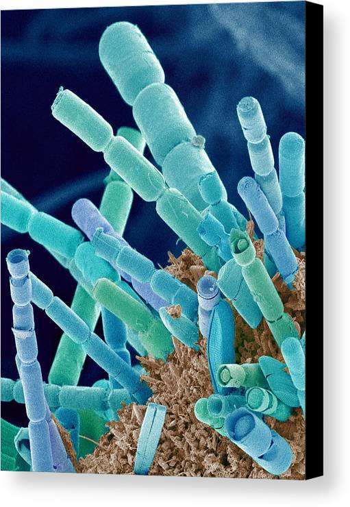 Phytoplankton Canvas Print featuring the photograph Marine Diatoms, Sem by Susumu Nishinaga