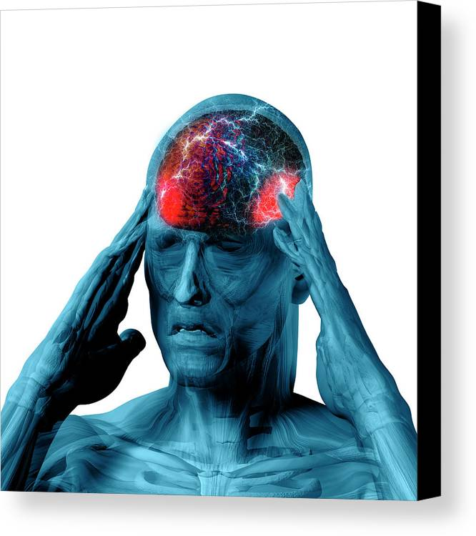 Man Canvas Print featuring the photograph Headache by Carol & Mike Werner