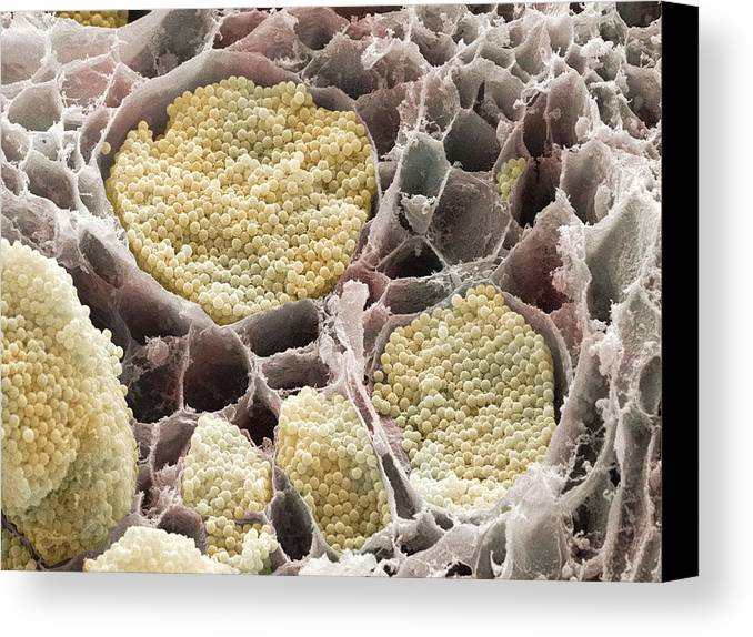 Plasmodiophora Brassicae Canvas Print featuring the photograph Cabbage Root Infection, Sem by Power And Syred