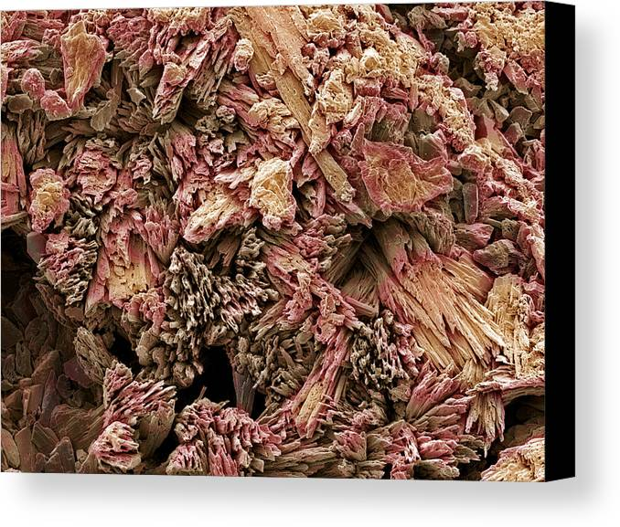 Calcium Sulphate Dihydrate Canvas Print featuring the photograph Gypsum Crystals, Sem by Steve Gschmeissner