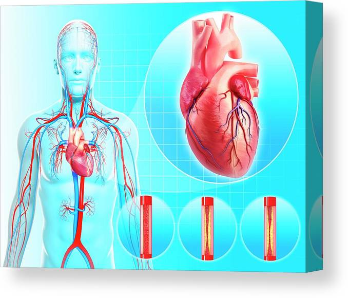 Artwork Canvas Print featuring the photograph Atherosclerosis by Pixologicstudio/science Photo Library