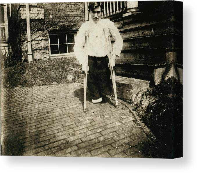 1910s Canvas Print featuring the photograph Child Labor, Frank, Whose Legs Were Cut by Everett