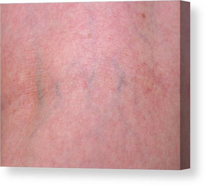 Blood Vessel Canvas Print featuring the photograph Skin by Joti/science Photo Library