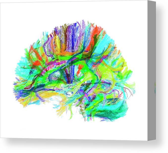 Brain Canvas Print featuring the photograph Advanced Mri Brain Scan by Philippe Psaila/science Photo Library