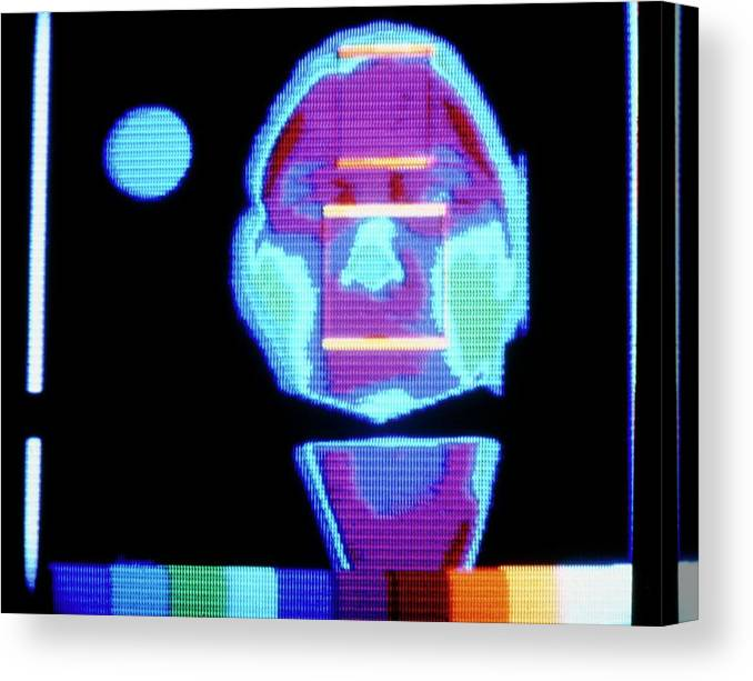 Thermography Canvas Print featuring the photograph Thermogram Of Face Prior To Taking Alcoholic Drink by Science Photo Library