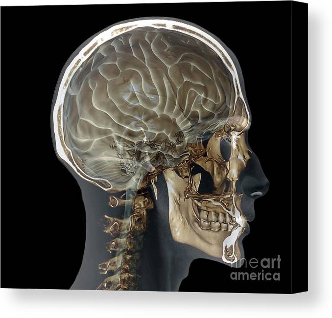 Normal Head And Neck, Mri And 3d Ct Scans Canvas Print / Canvas Art ...