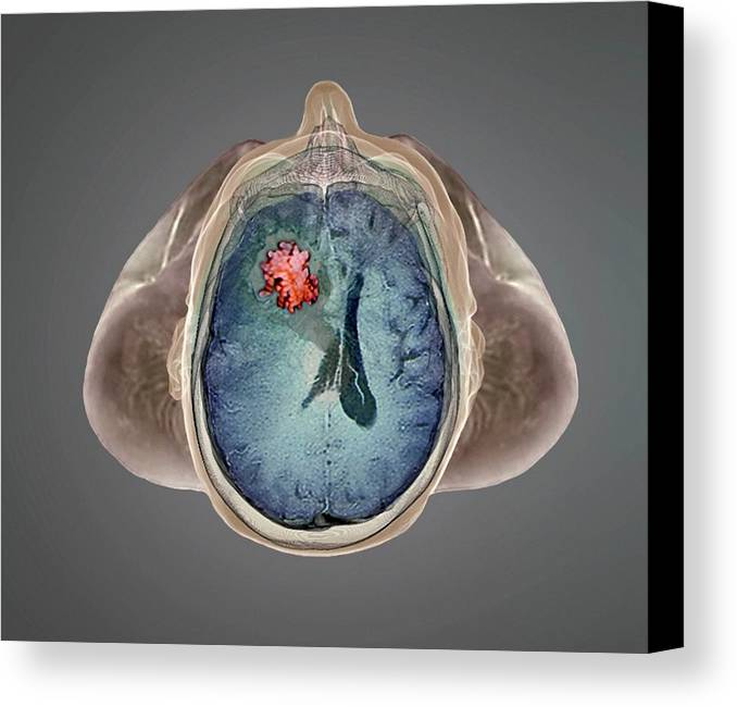 Human Canvas Print featuring the photograph Brain Tumour by Zephyr