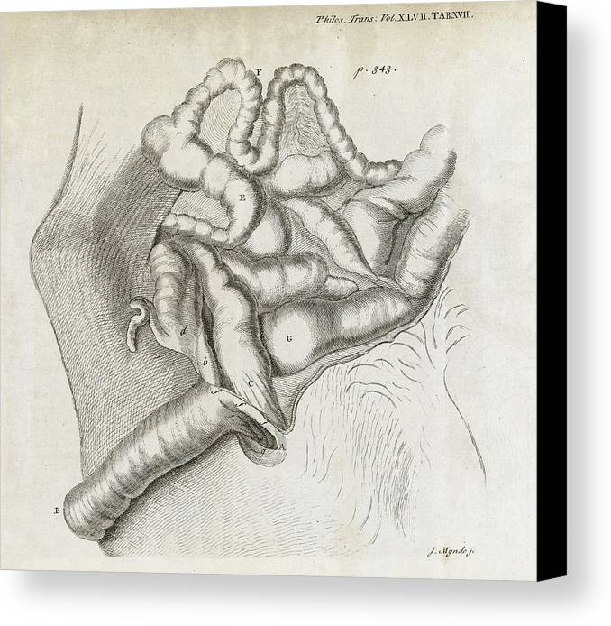 Disorder Canvas Print featuring the photograph Fistula And Hernia, 18th Century by Middle Temple Library