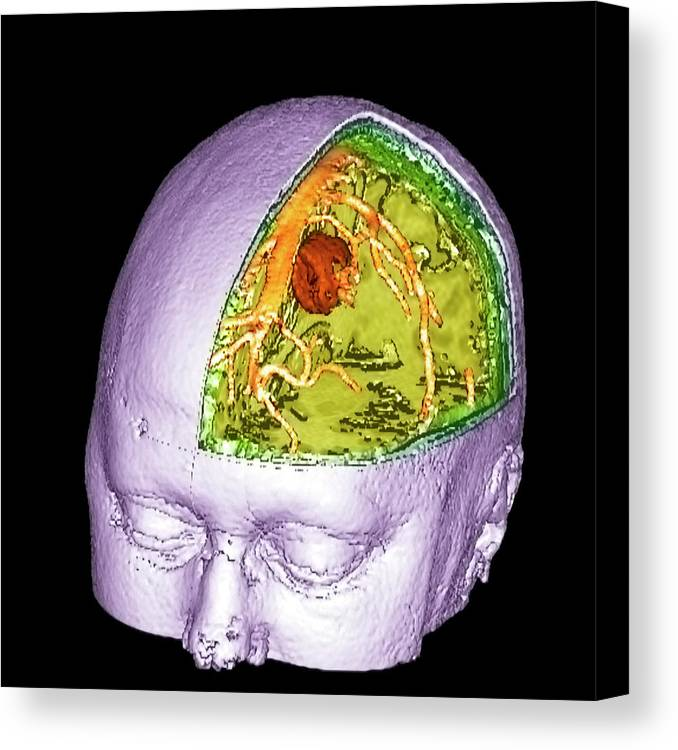 Brain Canvas Print featuring the photograph Brain Tumour by Simon Fraser/science Photo Library