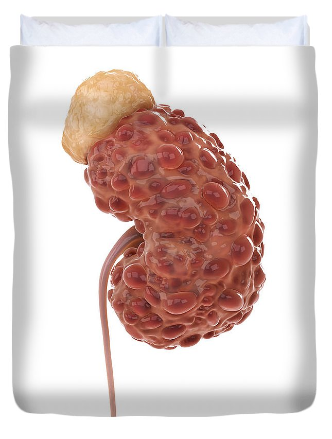 Problem Duvet Cover featuring the photograph Polycystic Kidney by Science Picture Co