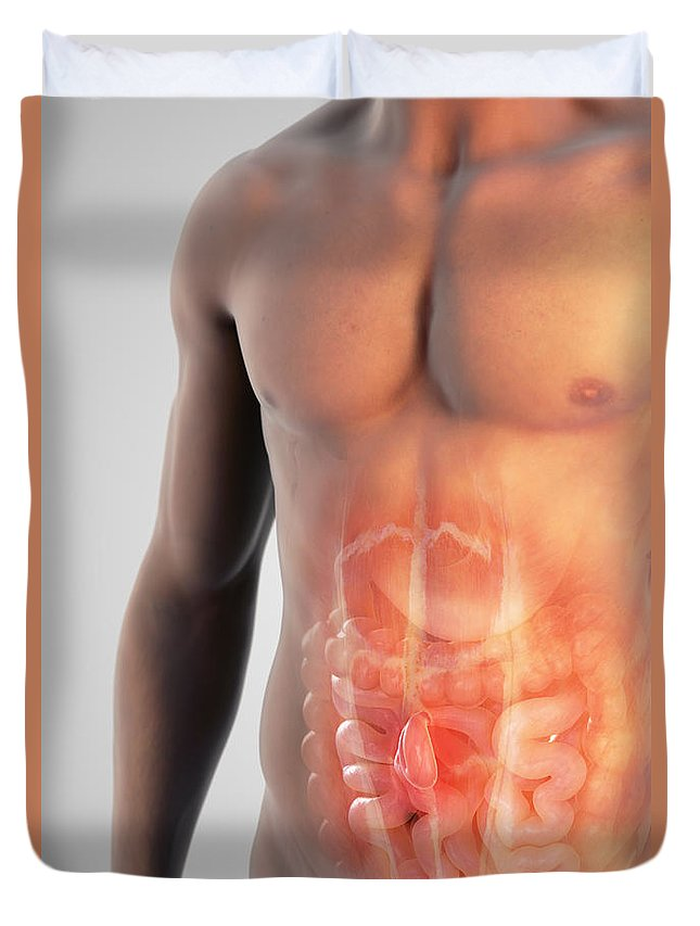 3d Visualisation Duvet Cover featuring the photograph Ventral Hernia by Science Picture Co